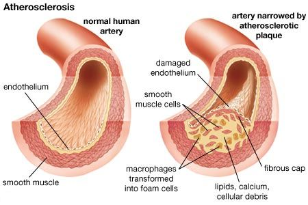 Arteries - Cardiovascular-Disease